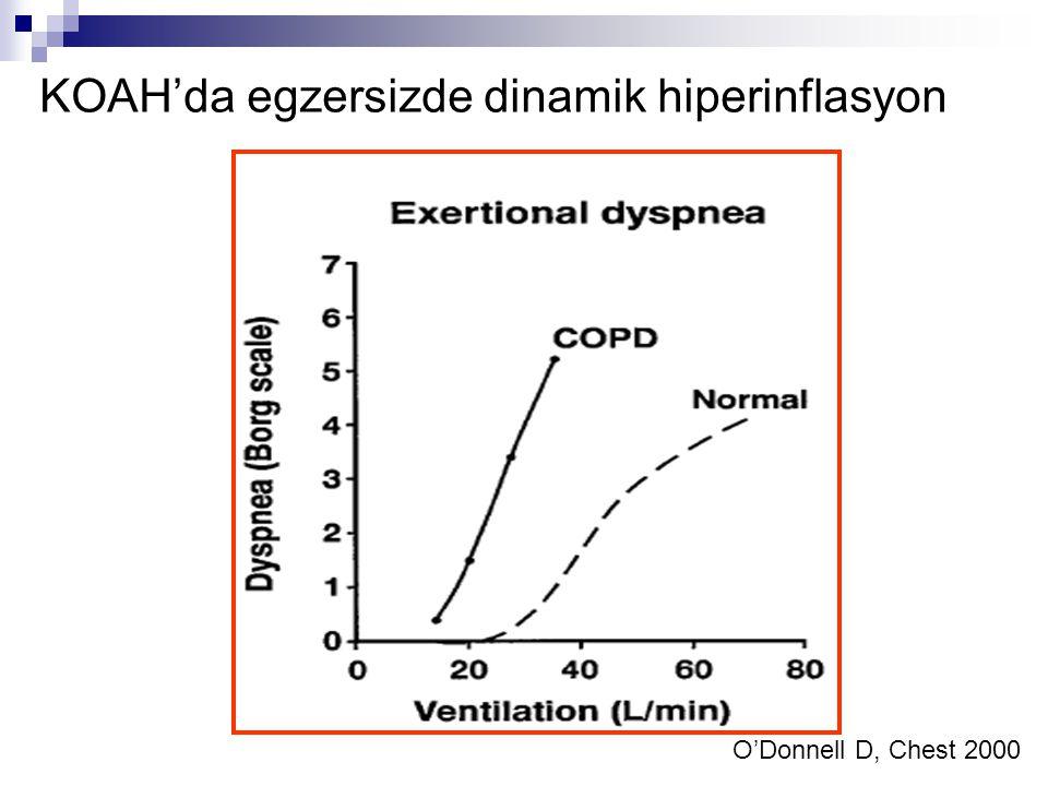 KOAH'da egzersizde dinamik hiperinflasyon