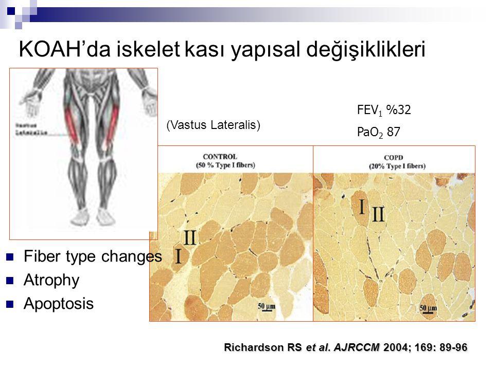 KOAH'da iskelet kası yapısal değişiklikleri