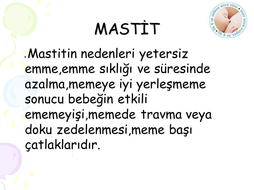 MASTİT