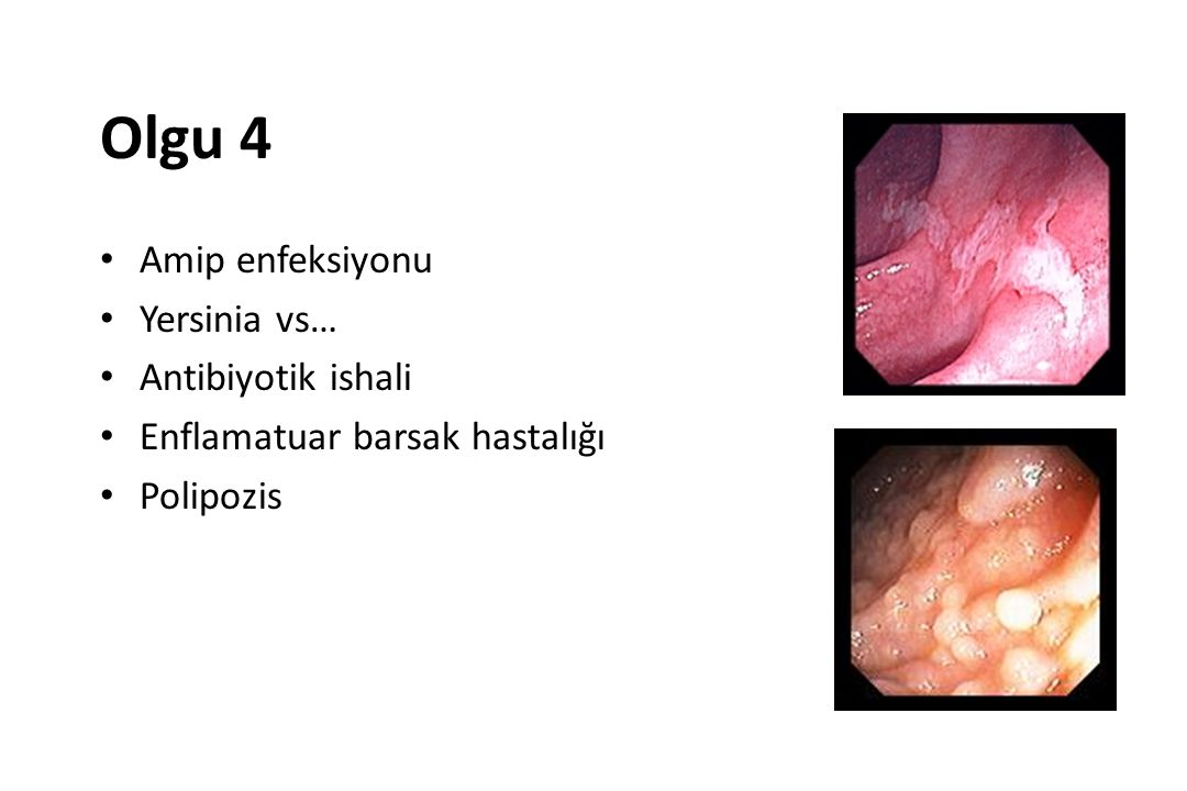 Olgu 4 Amip enfeksiyonu Yersinia vs… Antibiyotik ishali