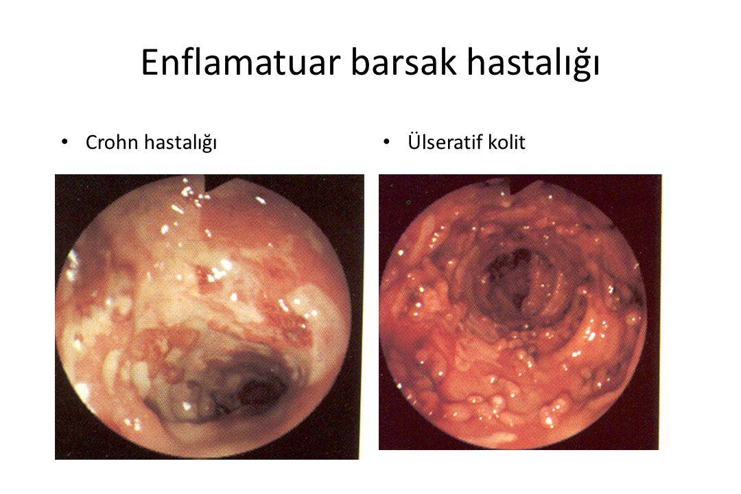 Enflamatuar barsak hastalığı