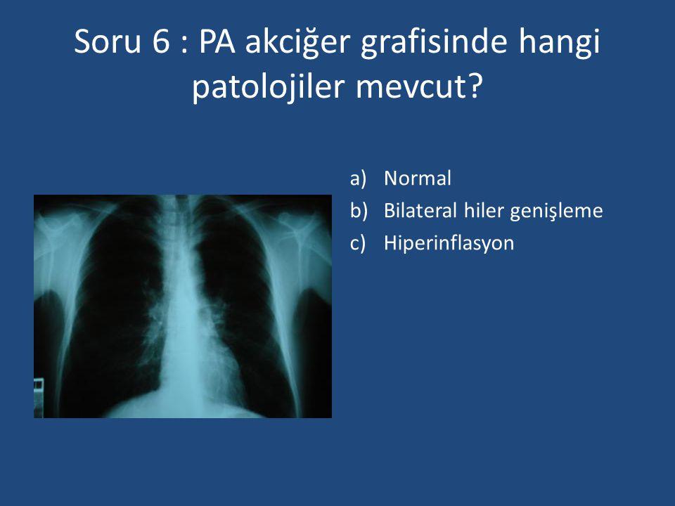 Soru 6 : PA akciğer grafisinde hangi patolojiler mevcut