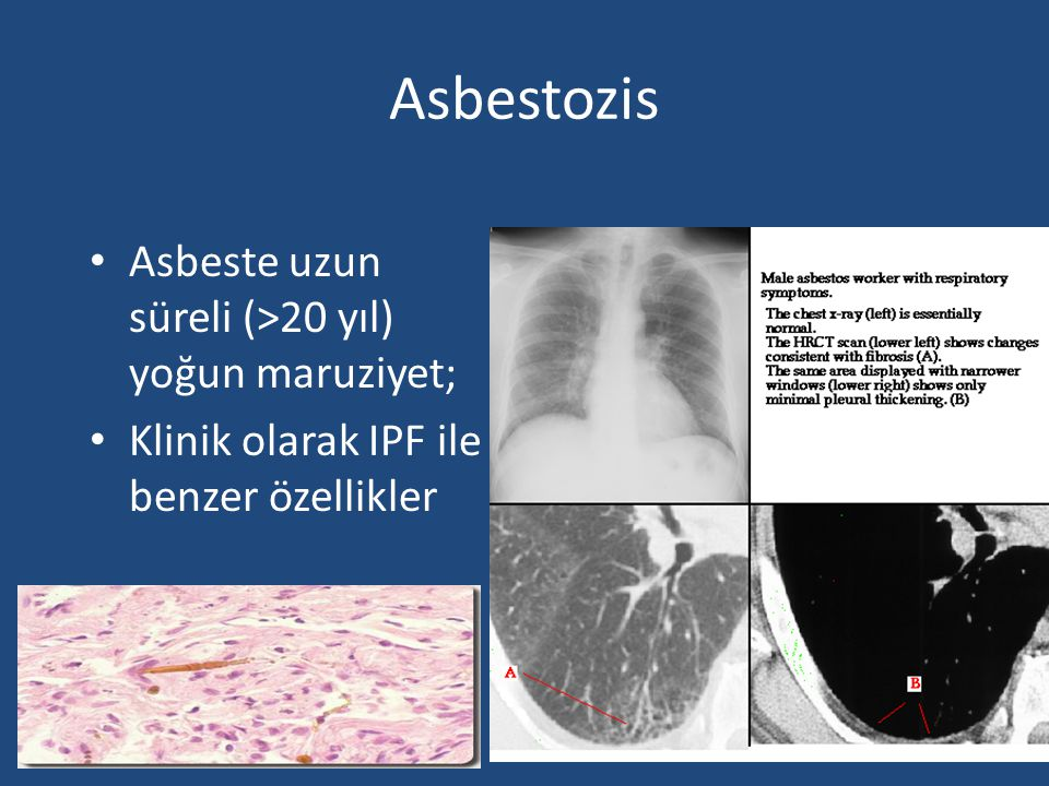 Asbestozis Asbeste uzun süreli (>20 yıl) yoğun maruziyet;