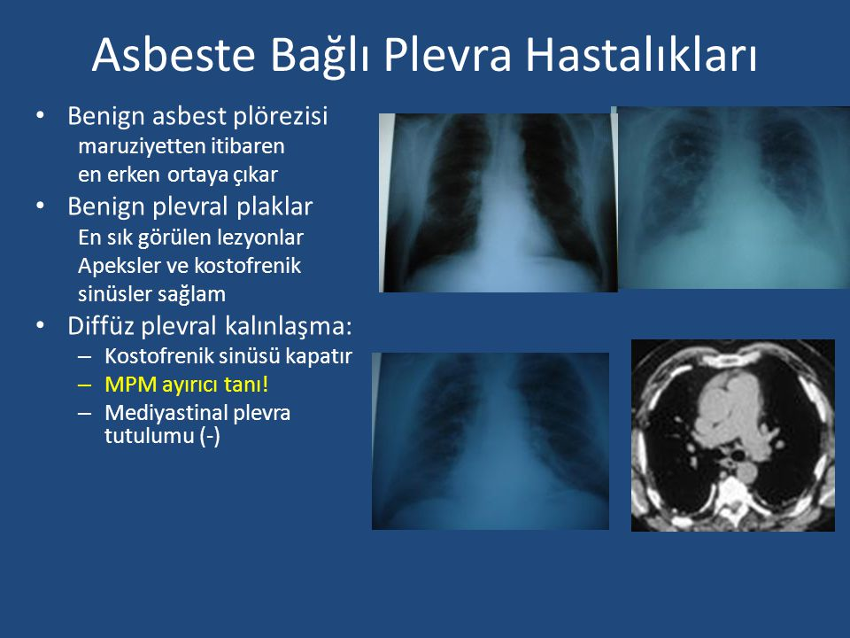 Asbeste Bağlı Plevra Hastalıkları