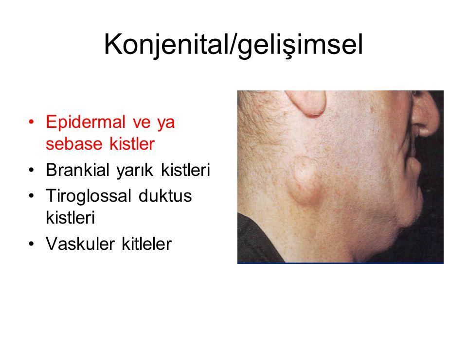 Konjenital/gelişimsel