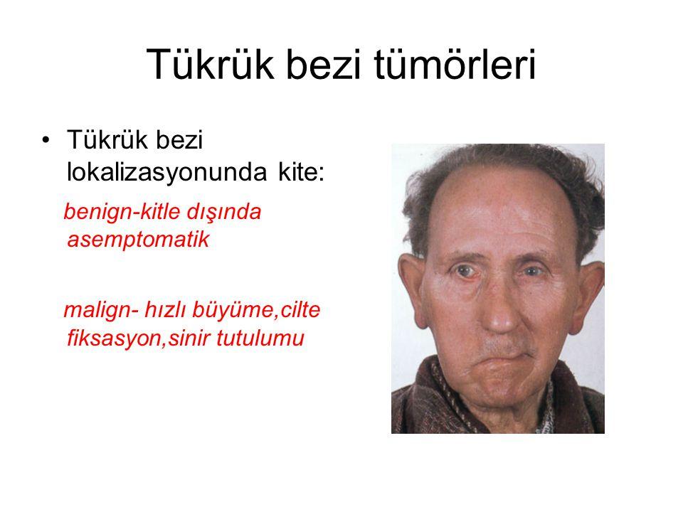Tükrük bezi tümörleri Tükrük bezi lokalizasyonunda kite: