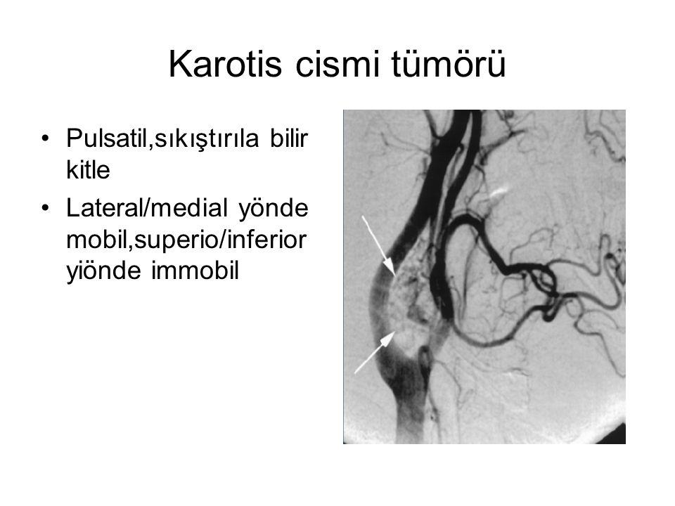 Karotis cismi tümörü Pulsatil,sıkıştırıla bilir kitle