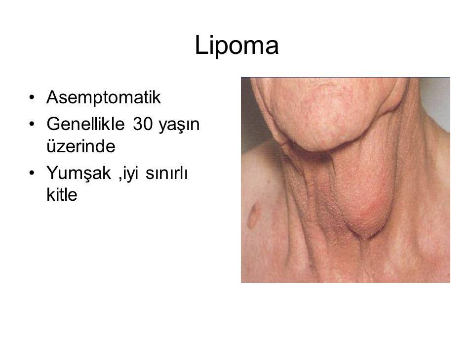 Lipoma Asemptomatik Genellikle 30 yaşın üzerinde