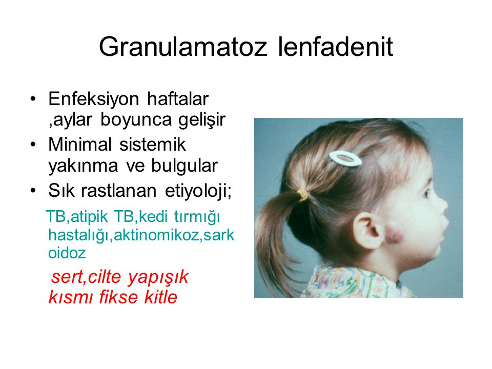 Granulamatoz lenfadenit