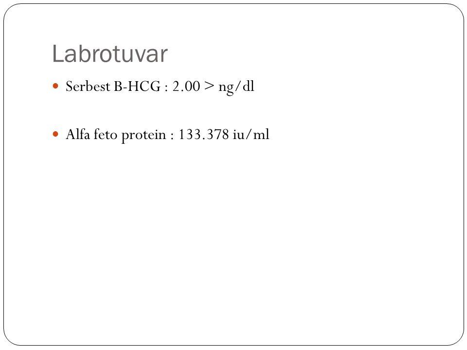 Labrotuvar Serbest B-HCG : 2.00 > ng/dl