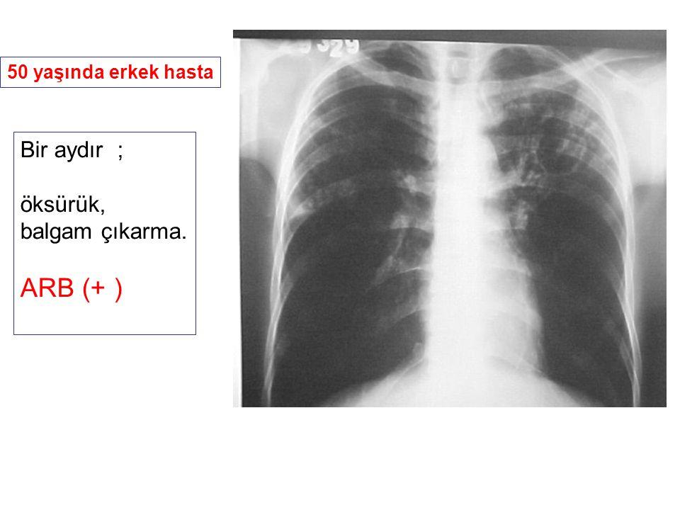 50 yaşında erkek hasta Bir aydır ; öksürük, balgam çıkarma. ARB (+ )