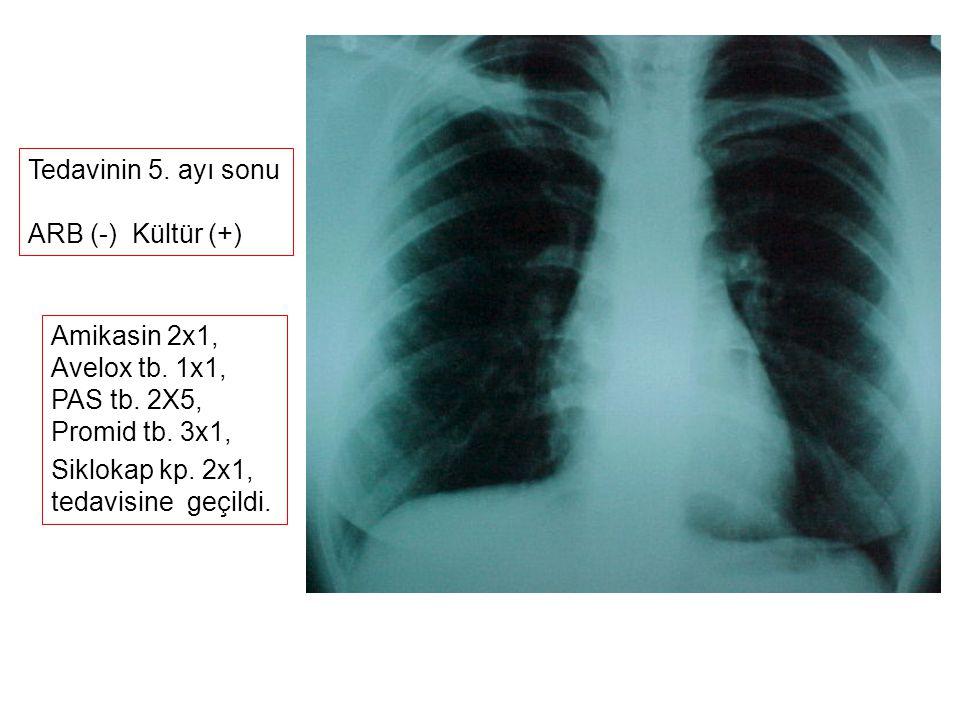 Tedavinin 5. ayı sonu ARB (-) Kültür (+) Amikasin 2x1, Avelox tb. 1x1, PAS tb. 2X5, Promid tb. 3x1,
