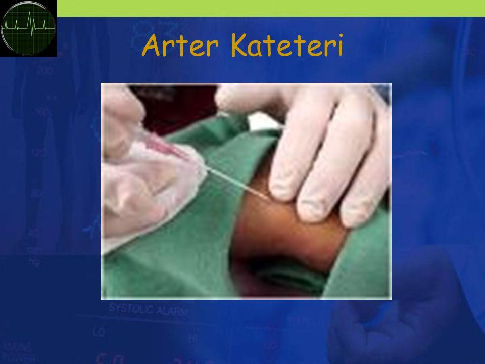 Arter Kateteri