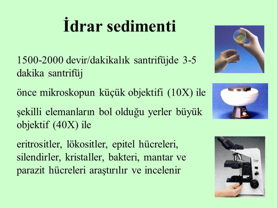 İdrar sedimenti 1500-2000 devir/dakikalık santrifüjde 3-5 dakika santrifüj. önce mikroskopun küçük objektifi (10X) ile.