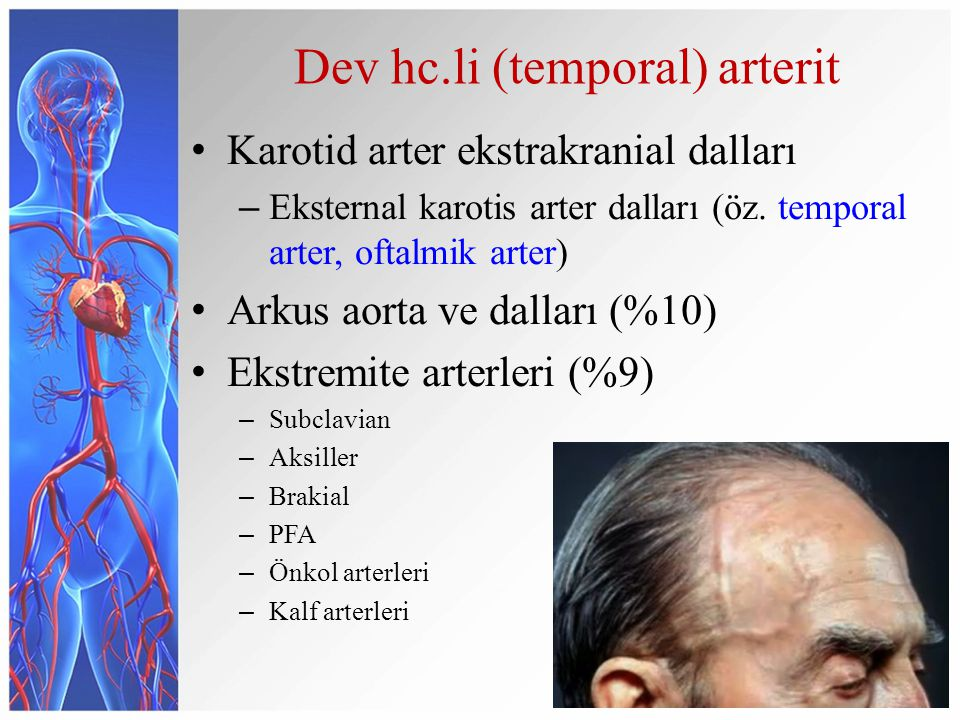 Dev hc.li (temporal) arterit