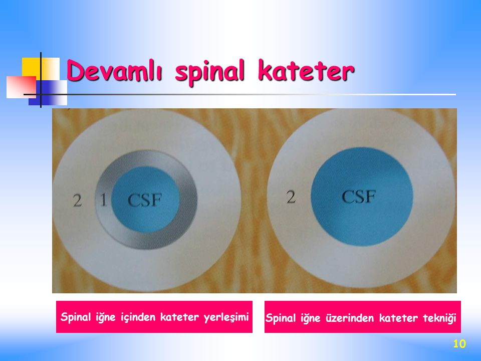 Devamlı spinal kateter