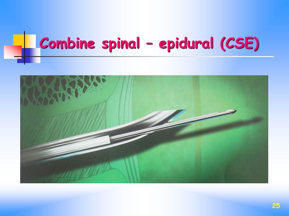 Combine spinal – epidural (CSE)