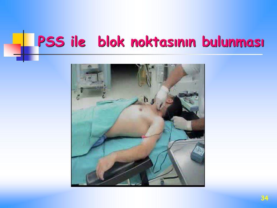 PSS ile blok noktasının bulunması