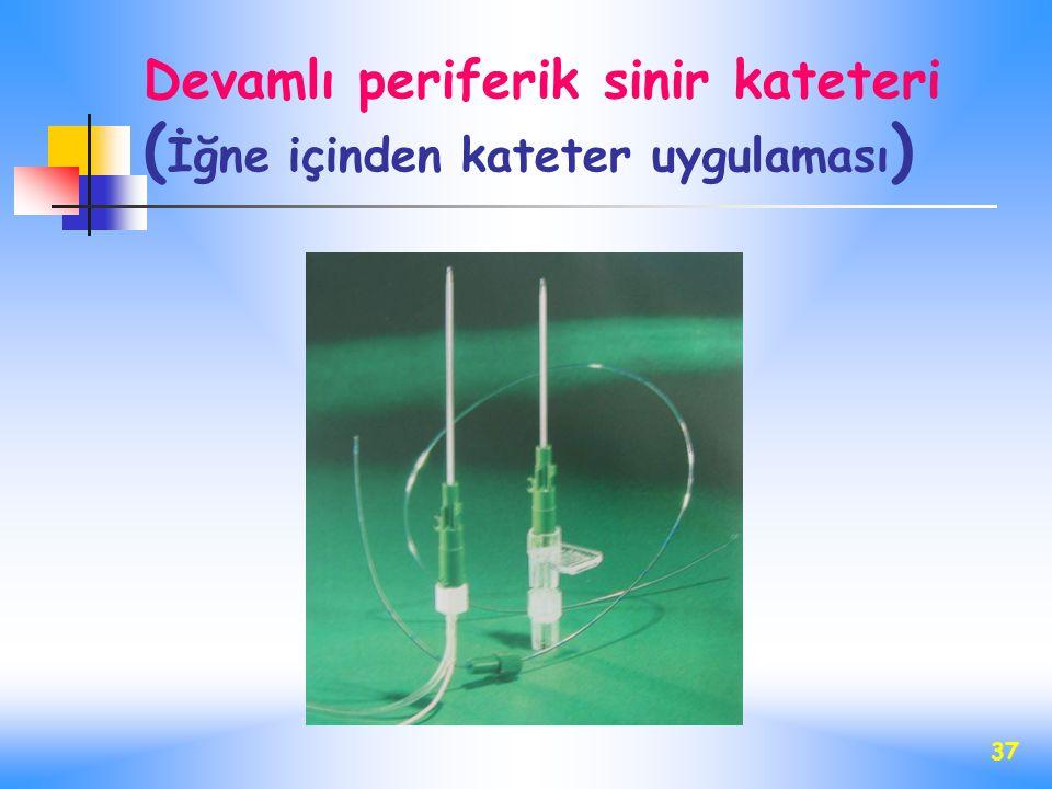 Devamlı periferik sinir kateteri (İğne içinden kateter uygulaması)
