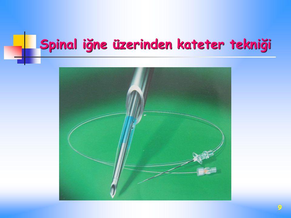 Spinal iğne üzerinden kateter tekniği