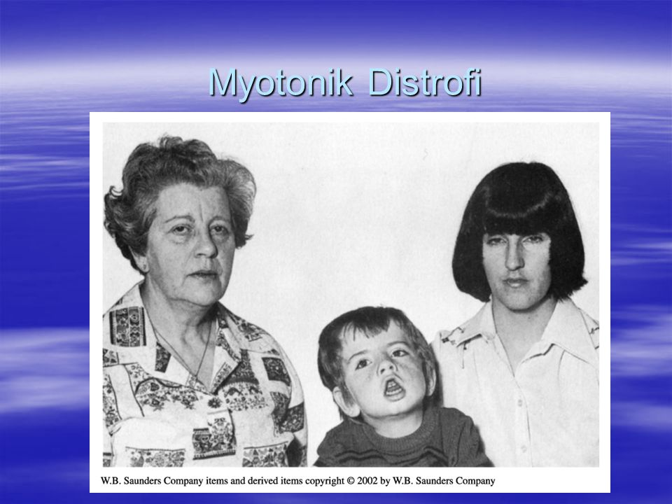 Myotonik Distrofi
