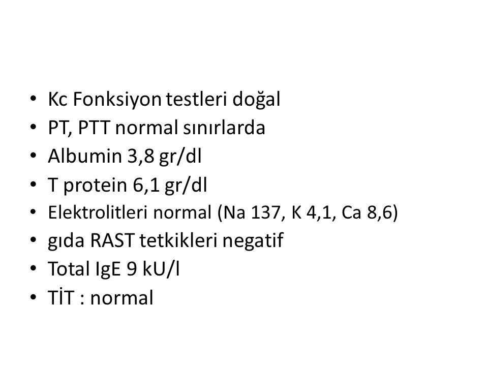 Kc Fonksiyon testleri doğal PT, PTT normal sınırlarda