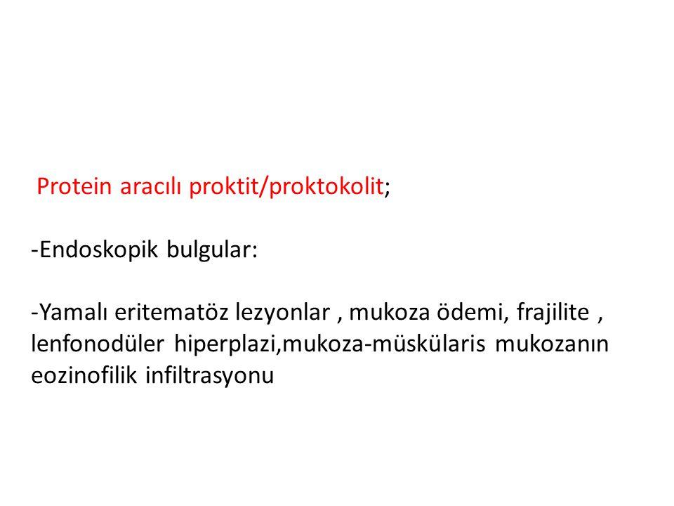 Protein aracılı proktit/proktokolit;