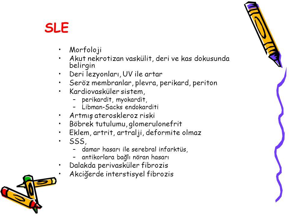SLE Morfoloji Akut nekrotizan vaskülit, deri ve kas dokusunda belirgin