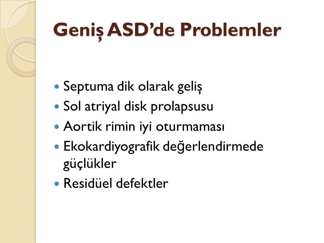 Geniş ASD'de Problemler