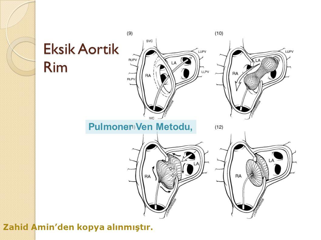 Eksik Aortik Rim Pulmoner Ven Metodu, Zahid Amin'den kopya alınmıştır.