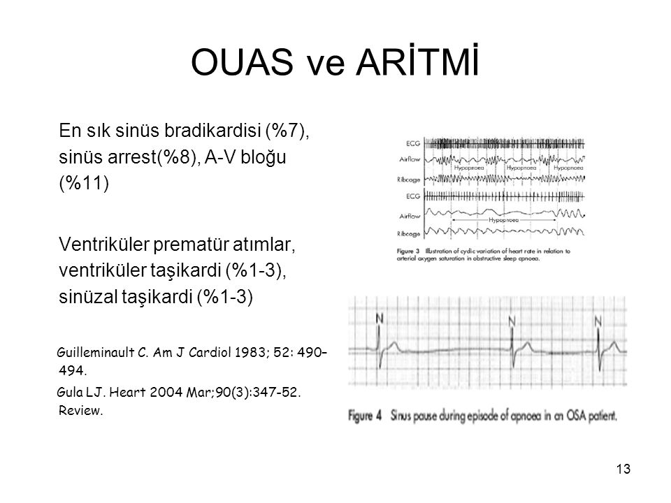 OUAS ve ARİTMİ En sık sinüs bradikardisi (%7), sinüs arrest(%8), A-V bloğu (%11)