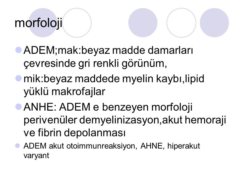 morfoloji ADEM;mak:beyaz madde damarları çevresinde gri renkli görünüm, mik:beyaz maddede myelin kaybı,lipid yüklü makrofajlar.