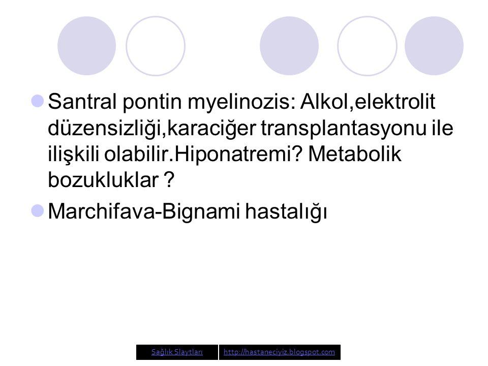 Marchifava-Bignami hastalığı