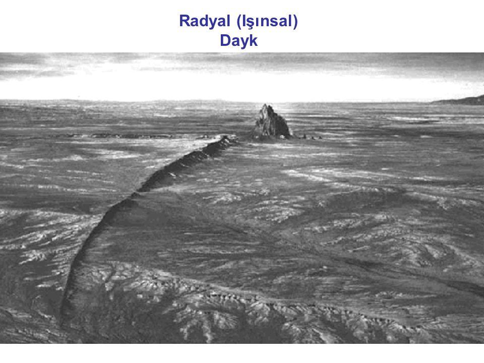Radyal (Işınsal) Dayk