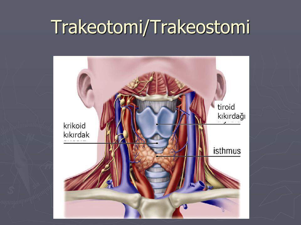 Trakeotomi/Trakeostomi