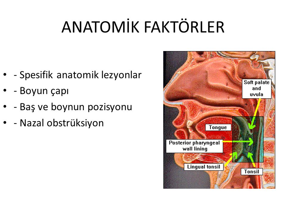 ANATOMİK FAKTÖRLER - Spesifik anatomik lezyonlar - Boyun çapı