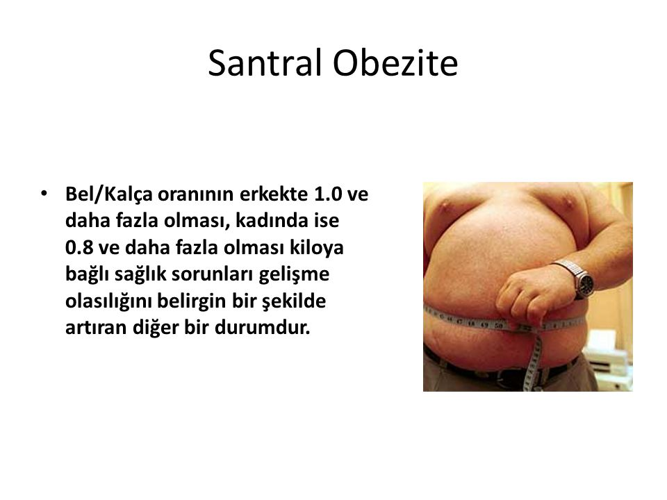 Santral Obezite