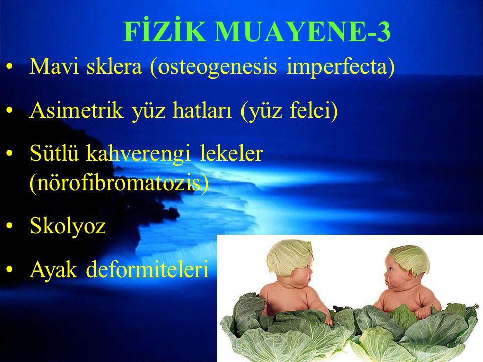FİZİK MUAYENE-3 Mavi sklera (osteogenesis imperfecta)