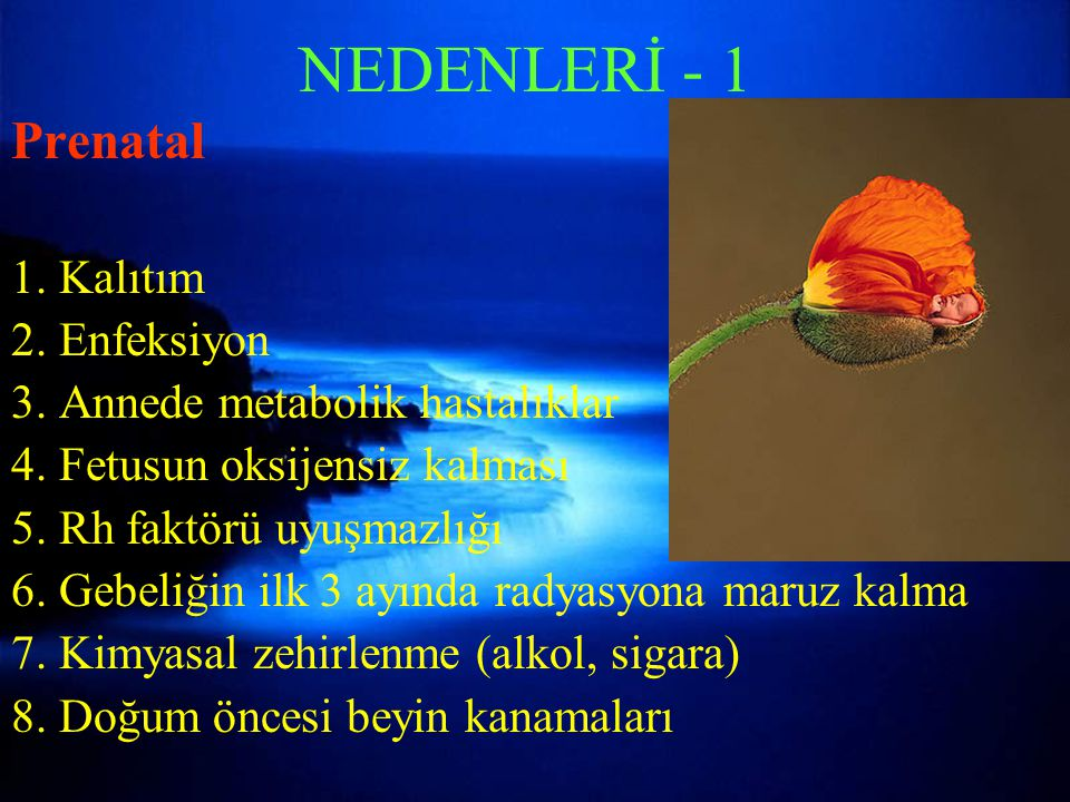 NEDENLERİ - 1 Prenatal 1. Kalıtım 2. Enfeksiyon