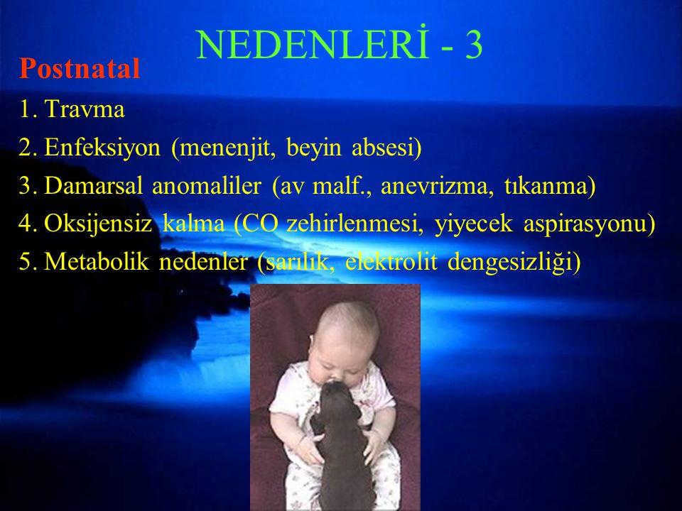 NEDENLERİ - 3 Postnatal Travma Enfeksiyon (menenjit, beyin absesi)