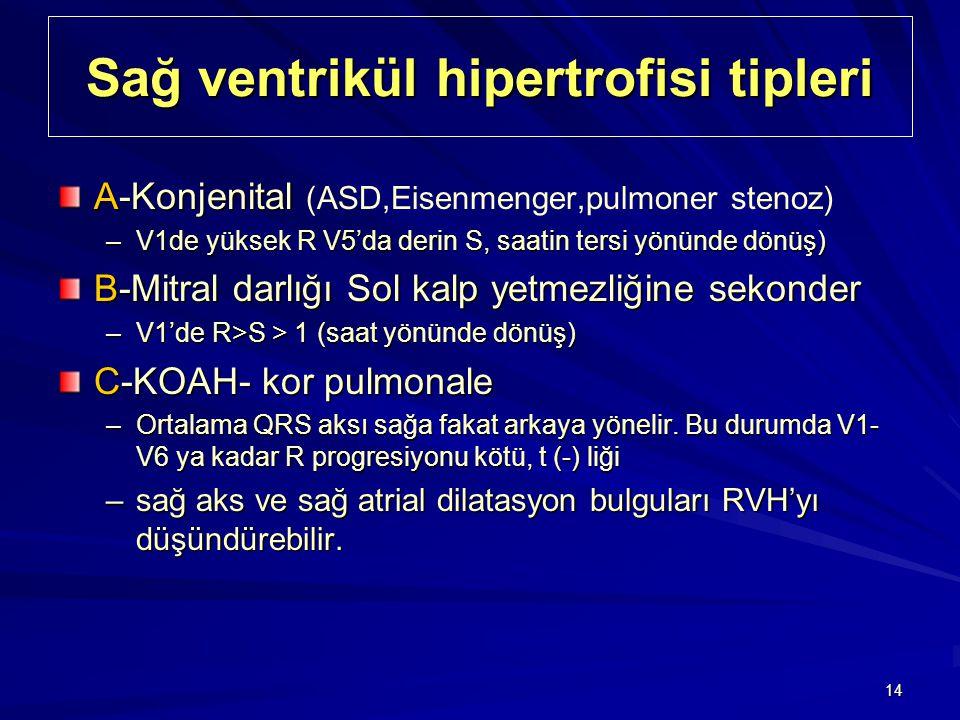 Sağ ventrikül hipertrofisi tipleri