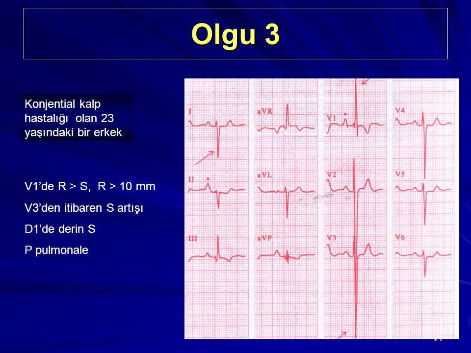 Olgu 3 Konjential kalp hastalığı olan 23 yaşındaki bir erkek