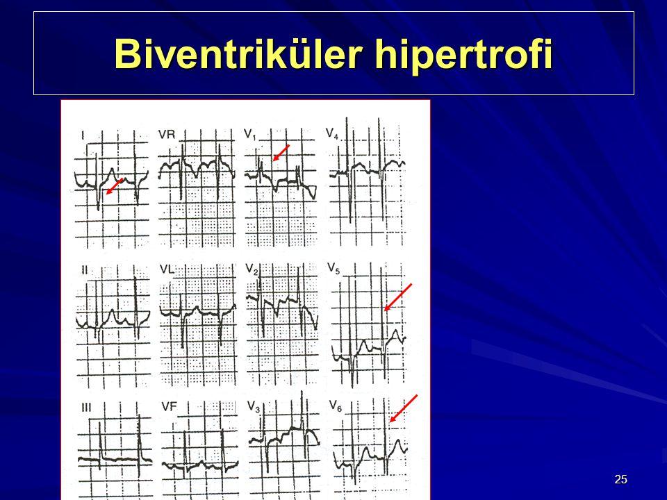 Biventriküler hipertrofi