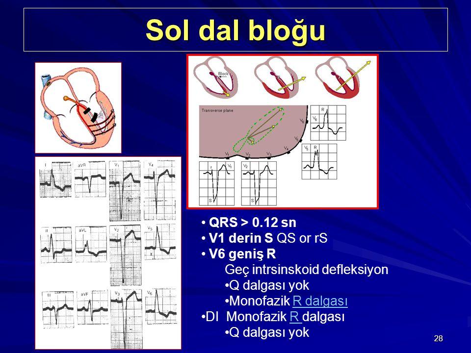Sol dal bloğu QRS > 0.12 sn V1 derin S QS or rS V6 geniş R