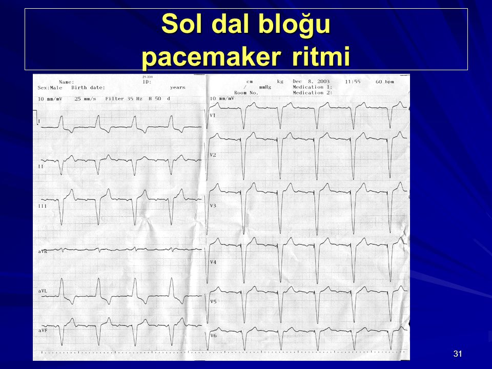 Sol dal bloğu pacemaker ritmi