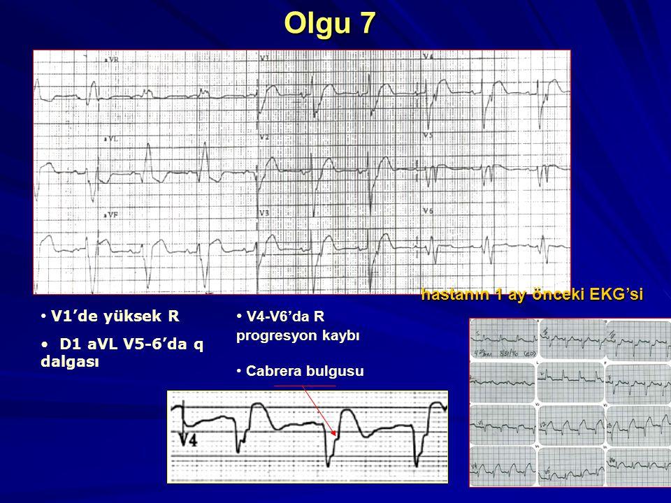 Olgu 7 hastanın 1 ay önceki EKG'si V1'de yüksek R
