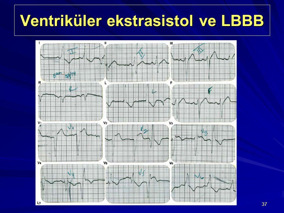 Ventriküler ekstrasistol ve LBBB