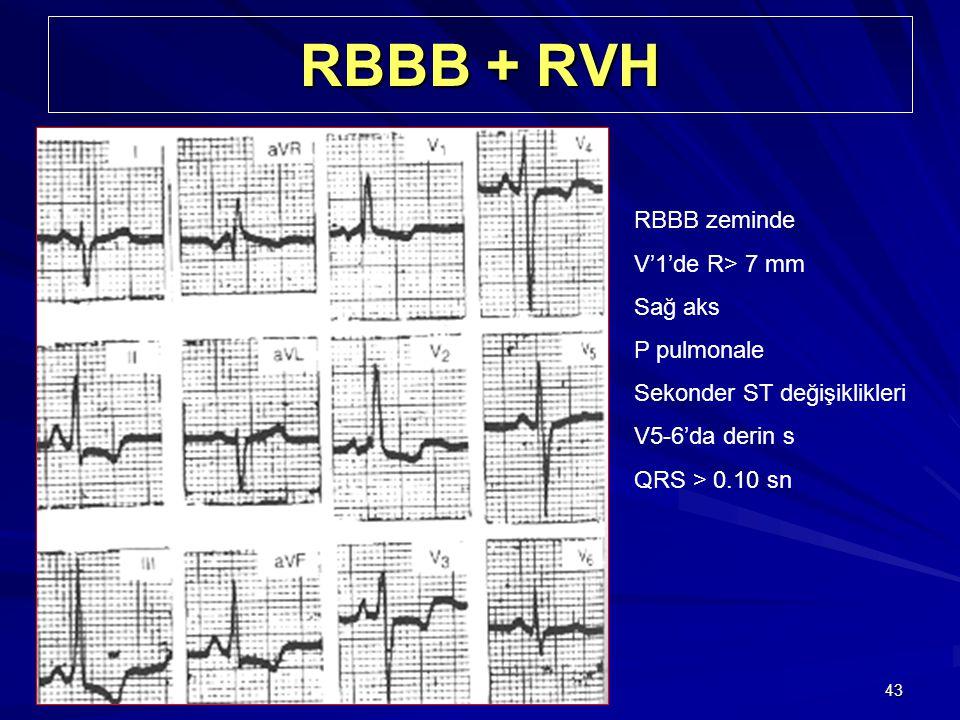 RBBB + RVH RBBB zeminde V'1'de R> 7 mm Sağ aks P pulmonale