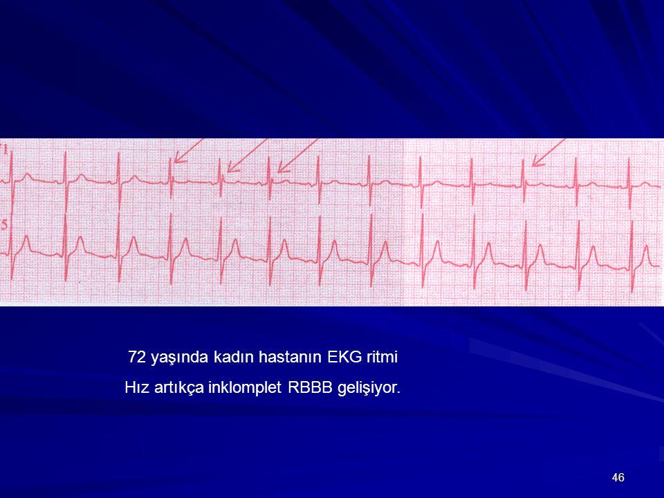 72 yaşında kadın hastanın EKG ritmi