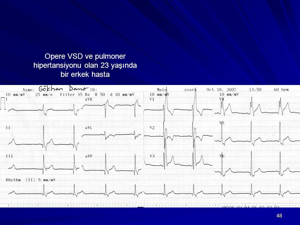 Opere VSD ve pulmoner hipertansiyonu olan 23 yaşında bir erkek hasta